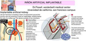 Riñón artificial implantable con cirugía en desarrollo en la Universidad de California. Fuente: Universidad de California, Campus de San Francisco23,24. Para detalles, ver texto.