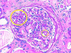 Segunda biopsia renal, caso clínico 2.