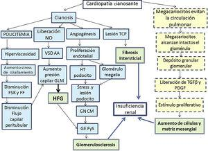 Fisiopatología de la nefropatía por cianosis. FF: fracción de filtración; FSR: flujo sanguíneo renal; GEFyS: glomerulosclerosis focal y segmentaria; GLM: glomérulo; GNCM: glomerulonefritis de cambios mínimos; HFG: hiperfiltración glomerular; HT: hipertrofia; PDGF: factor de crecimiento derivado de las plaquetas; TCP: túbulo contorneado proximal; TGFβ: factor de crecimiento tumoral β; VSD AA: vasodilatación arteriola aferente. Línea continua: vía de daño vascular; línea quebrada: vía de daño proliferativo; doble cuadrícula: vía de daño final.