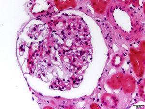 Microfotografía de uno de los 8 glomérulos que aportó la muestra en el que no se observan lesiones relevantes (H&E, ×40).