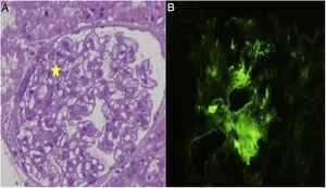 A) Biopsia renal, morfológicamente se observa un leve aumento de la celularidad mesangial en algunos glomérulos. B) Estudio de inmunofluorescencia directa donde se observan depósitos de C1q.