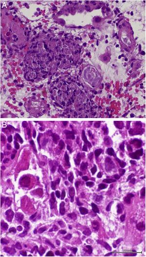 Light microscopy shows (A) interstitial nephritis and ill-defined granuloma formation surrounding tubules (hematoxylin and eosin stain; original magnification, 40×) and (B) intranuclear viral inclusion (hematoxylin and eosin stain; original magnification, 60×).