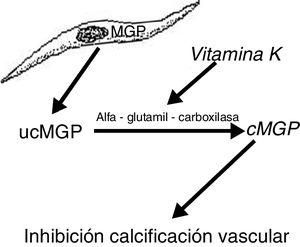 Esquema del efecto de la vitamina K sobre la matriz de proteína Gla. MGP: matriz de proteína Gla; cMGP: matriz de proteína Gla carboxilada; ucMGP: matriz de proteína Gla descarboxilada.