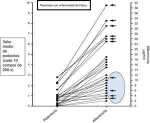 Niveles de podocituria y albuminuria en orina de niños con enfermedad de Fabry (flecha negra) y niños normales. Se observa subgrupo de 4 pacientes con enfermedad de Fabry que presentan niveles bajos de albuminuria y podocituria.