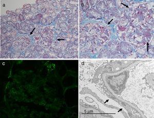Biopsia renal. a y b. Microscopia óptica: áreas de colapso mesangial y esclerosis glomerular segmentaria. c. Inmunofluorescencia: depósitos C3. d. Microscopia electrónica: borramiento difuso de los procesos podocitarios.
