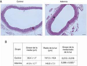 Los ratones con ERC inducida por dieta rica en adenina desarrollan daño estructural vascular. Los ratones fueron alimentados durante 6 semanas con la dieta estándar (Control) o con una dieta rica en adenina (Adenina). A) Las aortas fueron teñidas con hematoxilina-eosina. Se muestran cambios representativos. En los ratones Control no se aprecian lesiones. Obsérvese el engrosamiento de la media (asterisco) en las aortas de los ratones Adenina. Barra de escala: 100μm. Aumento ×20. B) Análisis morfométrico del grosor de la media y el radio de la luz, realizado mediante el software ImageJ y cálculo de su ratio. Se considera radio medio la media de 5 medidas independientes en distintas direcciones. Los valores se representan como la media±SEM. 1p<0,05 vs. Control. n=5 animales/grupo.