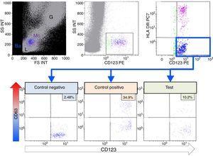 Test de activación de basófilos. Mediante citometría de flujo se pueden diferenciar las diferentes subpoblaciones leucocitarias: linfocitos (L), monocitos (Mo), granulocitos (G), mediante tamaño o forward scatter (FS) y complejidad o side scatter (SS). Los basófilos (Ba) en azul, se identifican mediante la expresión del receptor de la IL-3 (CD123) y ausencia de expresión de HLA-DR. Para evaluar la degranulación de los basófilos, se mide el % de expresión de CD63, en ausencia de estímulo (Control Negativo), tras activación con fMLP y al incubar con omeprazol. El índice de estimulación se calcula con el cociente entre el %CD63 del test y el %CD63 del control negativo.