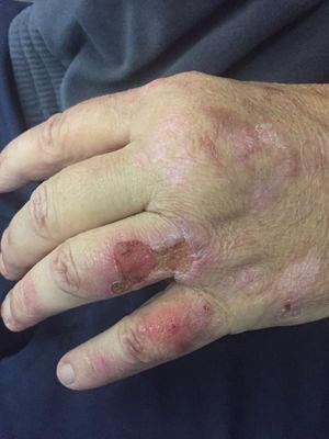 Lesiones en dorso de la mano izquierda.