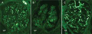 Contrasting features of IgA dominant IRGN and idiopathic IgAN. Mesangial and capillary wall coarse granular deposits are prominent in exudative IgA IRGN (A) and less so in resolving IgA IRGN (B). These immunofluorescence patterns contrast with the largely mesangial deposits of IgA in idiopathic IgAN (C).