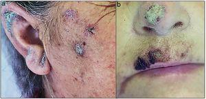 Lesions in the face: erythematous-scaly plaques (a and b).