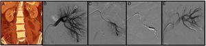 """Mujer de 42 años con antecedentes de lupus, prótesis valvular aórtica en tratamiento con dicumarínicos e insuficiencia renal en estudio. Previo al abandono de la anticoagulación se realiza una biopsia renal. A las 6 h de la biopsia presenta un dolor intenso en el flanco izquierdo con anemización severa. Se realiza una angio-TAC donde se objetiva un hematoma retroperitoneal y un pseudoaneurisma (PSA) (flecha) (A). Mediante un acceso femoral derecho y la colocación de un introductor 6F se cateteriza la arteria renal izquierda con la ayuda de un catéter Cobra 5F y una guía (0.014"""") con punta atraumática. Seguidamente, se realiza una arteriografía selectiva donde se objetiva el PSA (B y C). Y, por último, se avanza un microcatéter 2, 7 F (Progreat, Terumo®) a través del catéter Cobra hasta llegar a la lesión y se emboliza con microcoils de liberación controlada (Detach-18, Cook®) con un resultado óptimo (D y E)."""