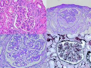 Microscopia óptica: se observa proliferación mesangial e hipercelularidad endocapilar. También, proliferación extracapilar con semilunas celulares.