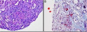 Biopsia renal. A) Glomérulo con engrosamiento de paredes capilares, necrosis fibrinoide y semiluna epitelial (hematoxilina-eosina). B) Esquistocitos en mesangio y luces y paredes de los vasos (tricrómico de Masson).