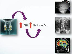 Repercusión clínica del hiperparatiroidismo.