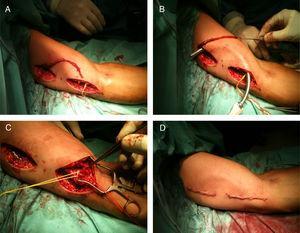 Procedimiento quirúrgico de implantación de una FAV nativa humerobasílica con superficialización y trasposición en un solo acto quirúrgico. Disección de la vena basílica mediante dos incisiones complementarias (A), tunelización en plano subcutáneo anterior (B), anastomosis arteriovenosa (C) y aspecto final tras cierre de heridas quirúrgicas (D).
