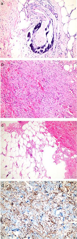 Histopathological examinations. (a) Lesions on legs: Dermal and subcutaneous arteriolar calcification and narrowing of the vascular lumen in subcutaneous tissue (HE stain; original magnification ×200). (b, c) Lesions on infraumblical region: Spindle cell proliferation, focal sclerosis, thick collagen bundles in dermis, fibrous thickening of the septum in subcutaneous tissue and subcutaneous arteriolar calcification (HE stain; original magnification ×40 and ×200 respectively). (d) CD34 positivity.