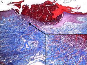 Tinción con tricrómico de Masson 40×. A) Epidermis con acantosis que rodea un tapón compuesto por detritus celulares, queratina y células inflamatorias. B) Presencia de fibras de colágeno, que se introducen desde la dermis hacia la epidermis.