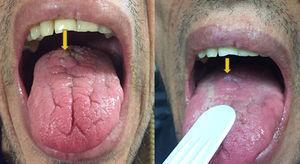 Lesión en el dorso de la lengua.