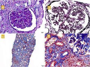 A) Glomérulo con refuerzo del dibujo glomerular, proliferación mesangial y engrosamiento de las paredes capilares. PAS, 40×. B) Imágenes de doble contorno (marcadas con flechas). Técnica de plata. C) Fibrosis moderada, atrofia tubular e infiltrados linfoplasmocitarios a nivel intersticial. Masson, 40×. D) Arteriolas con hiperplasia de músculo liso y disminución de la luz. Masson.