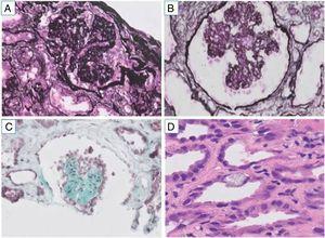 Biopsia renal. A) Glomérulo con patrón colapsante en tejido parafinado con artefacto de procesamiento (plata metenamina, ×200). B) Esclerosis del ovillo glomerular e hiperplasia podocitaria, ya en forma de cruz copta en tejido congelado (plata metenamina, ×200). C) Glomérulo con colapso cordiforme en tejido congelado (tricrómico, ×200). D) Daño tubular agudo y cristales de oxalato cálcico en epitelio tubular (H&E, ×200).