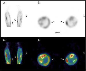 SPECT óseo, cortes coronal (A) y axial (B). SPECT/TC óseo, cortes coronal (C) y axial (D). Se evidencian calcificaciones heterotópicas en región medial de ambas piernas (flechas).