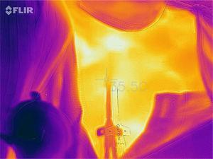 Ejemplo de una fotografía térmica del área de inserción del catéter perteneciente a uno de los pacientes incluidos.