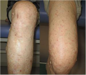 Subsidence of palpable purpura on the left leg after initiating enalapril.