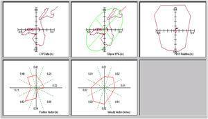Ejemplo de los registros obtenidos de análisis vectorial, longitud, superficie y velocidad, de los desplazamientos del centro de presiones a lo largo del eje antero-posterior y medio-lateral.