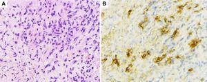 Histological sections of pancreatic fine-needle aspiration specimens. (A) Hematoxylin and eosin staining showing storiform fibrosis (original magnification ×400). (B) IgG4-immunohistochemical staining showing a large number of IgG4-positive plasma cells (>10 per high-power field, original magnification ×400).