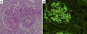 Histological sections of renal biopsy specimens. (A) Periodic acid-Schiff staining showing a cellular crescent formation (original magnification ×400). (B) Immunofluorescence staining showing linear patterns of IgG deposition along the glomerular basement membrane (original magnification ×400).