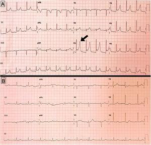 A) Electrocardiograma en el momento del desarrollo de dolor torácico, mostrando descenso generalizado del segmento PR, y ascenso del segmento ST en V3-V5. B) Electrocardiograma al alta, con resolución de las alteraciones previas.