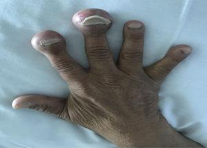Foto de la mano de la paciente, con abultamiento en las falanges distales de los dedos.