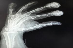 Radiografía de las manos de la paciente, con calcificaciones en las falanges distales que presentaban el abultamiento.