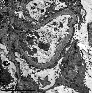 Estudio de microscopía electrónica que muestra fusión pedicelar difusa que afecta a más del 80% de la superficie capilar, junto con imágenes de transformación microvellositaria de los podocitos. Las membranas basales muestran un grosor habitual, no se evidencian depósitos parietales ni mesangiales. Las células endoteliales no muestran alteraciones.