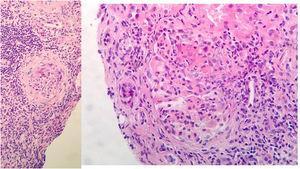 Biopsia renal: 11 glomérulos, 3 globalmente esclerosados. Cinco con cambios congestivos menores y 3 con proliferación extracapilar y formación de semilunas celulares Compartimento túbulointersticial con inflamación crónica y aguda, atrofia tubular del 30%, tiroidización tubular y fibrosis del intersticio del 30%. No cambios en vasos de mediano calibre, ni engrosamiento de la media arterial. No depósitos congófilos. Inmunofluorescencia directa con leve depósito mesangial granular de C3+, sin depósitos de IgG, IgM, IgA ni restricción de cadenas ligeras.