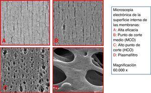 Microscopia electrónica de la superficie interna de distintos tipos de membrana.