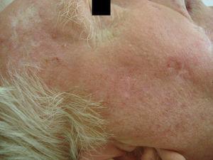 Múltiples queratosis actínicas previas al tratamiento.