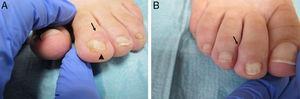 A. Quiste en la región periungueal (flecha), con depresión longitudinal en la lámina ungueal (punta de flecha), del segundo dedo del pie izquierdo. B. Lesión quística en el segundo dedo del pie derecho (flecha).