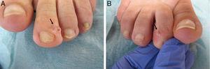 A. Contenido gelatinoso tras la punción del quiste del dedo del pie izquierdo (flecha). B. Material gelatinoso claro de lesión quística en el segundo dedo del pie derecho (flecha).