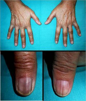 Hiperpigmentación cutánea. Líneas y bandas longitudinales hiperpigmentadas en las uñas de los primeros dedos de ambas manos.