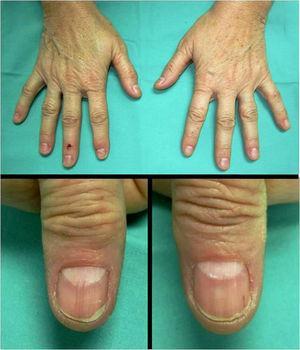Melanoniquia residual a nivel distal. Lúnulas libres de pigmento.