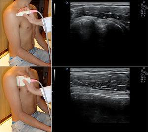Posición del hombro y de la sonda para el estudio del tendón de la porción larga del bíceps&#59; imágenes normales en sección transversal (arriba) y longitudinal (abajo).