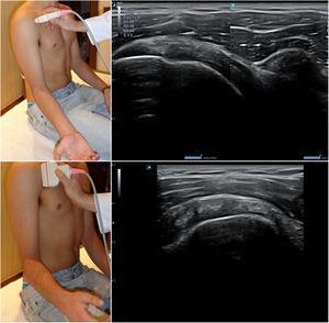 Posición del hombro y de la sonda para el estudio del tendón del subescapular; imágenes normales en sección longitudinal (arriba) y transversal (abajo).