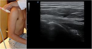 Posición del hombro y de la sonda para el estudio del tendón de infraespinoso y redondo menor&#59; imagen normal en sección longitudinal.