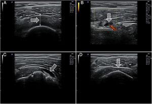 Diferentes hallazgos en ecografía del hombro. A) Aumento de grosor e hipoecogenicidad del tendón de supraespinoso en relación con tendinitis. B) Colección anecoica en la vaina de la porción larga de bíceps con flujo Doppler en relación con tenosinovitis aguda. C) Colección anecoica en la bursa subacromial en relación con bursitis. D) Imagen de adelgazamiento con pérdida de las fibras superficiales (signo de la rueda pinchada) del tendón de supraespinoso en relación con rotura de espesor parcial.