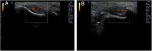 Presencia de neovascularización detectable mediante Doppler de potencia en un caso de epicondilitis (A) y entesitis aquílea (B).