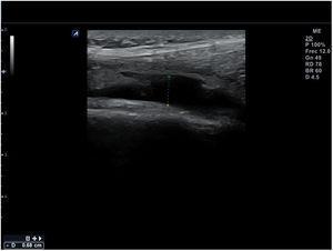 Derrame articular de rodilla: colección anecoica en receso suprarrotuliano.