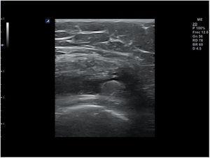 Engrosamiento hiperecoico irregular en la membrana sinovial: sinovitis.