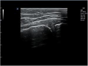 Erosiones corticales en el contexto de enfermedad degenerativa de rodilla.