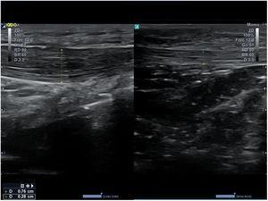 Imagen comparativa de un tendón rotuliano derecho (a la izquierda de la figura) con aumento de grosor e hipoecogenicidad por tendinitis, e izquierdo (a la derecha de la figura) normal.